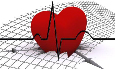 přístroje EKG